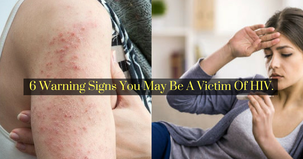 Symptoms Of Hiv: 6 Warning Signs You May Be A Victim Of HIV.