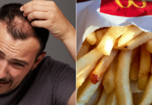 French Fries Can Cure Male Baldness