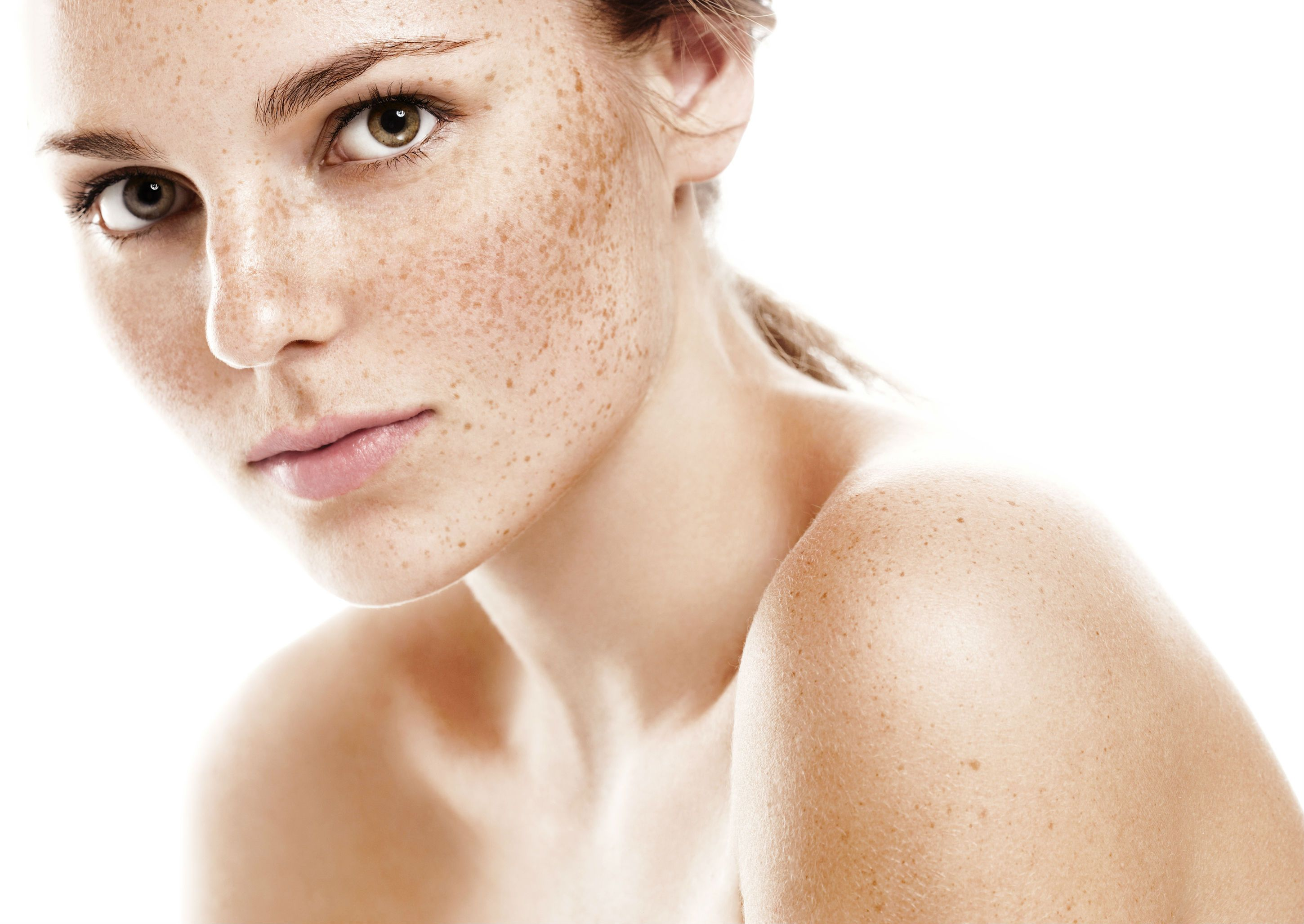 Home Remedies to Remove pigmentation